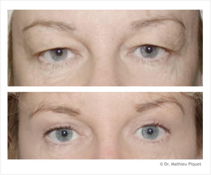 chirurgie esth tique des yeux chez une femme pictures to pin on pinterest. Black Bedroom Furniture Sets. Home Design Ideas