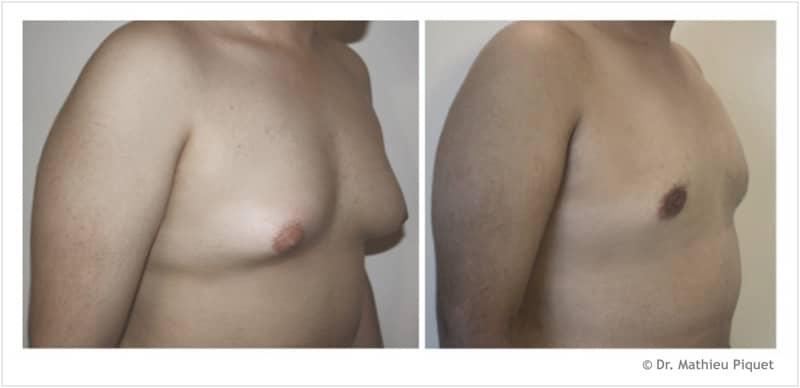 gynecomastie chirurgie sein pour homme aix en provence