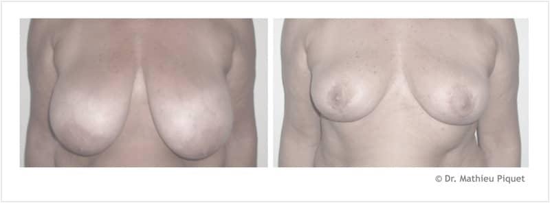 Réduction mammaire pour hypertrophie (400 g par sein)