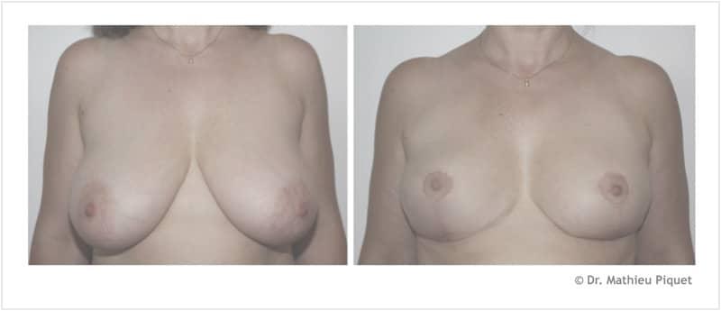 Réduction mammaire pour hypertrophie (450 g par sein)
