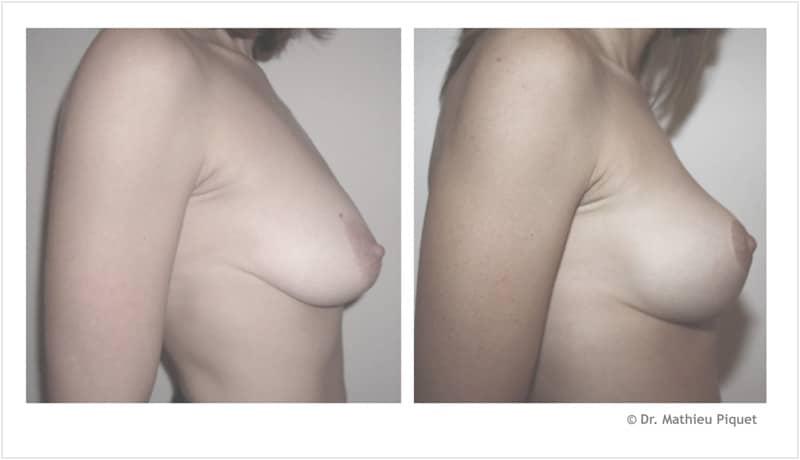 Lifting des seins pour ptôse mammaire (chute des seins) – vue de profil