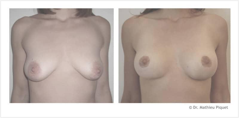 Lifting des seins pour ptôse mammaire (chute des seins) – vue de face