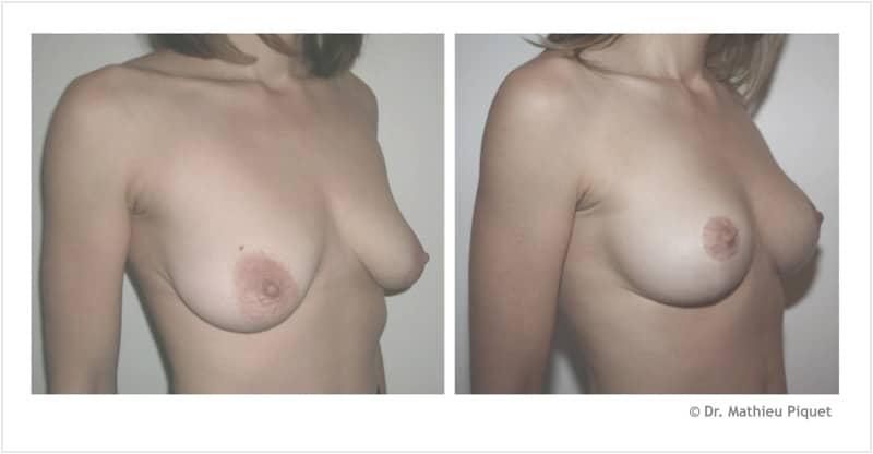 Lifting des seins pour ptôse mammaire (chute des seins) – vue de 3/4