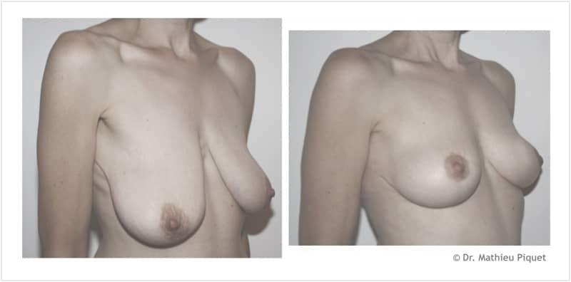 Lifting des seins pour ptôse mammaire après amaigrissement
