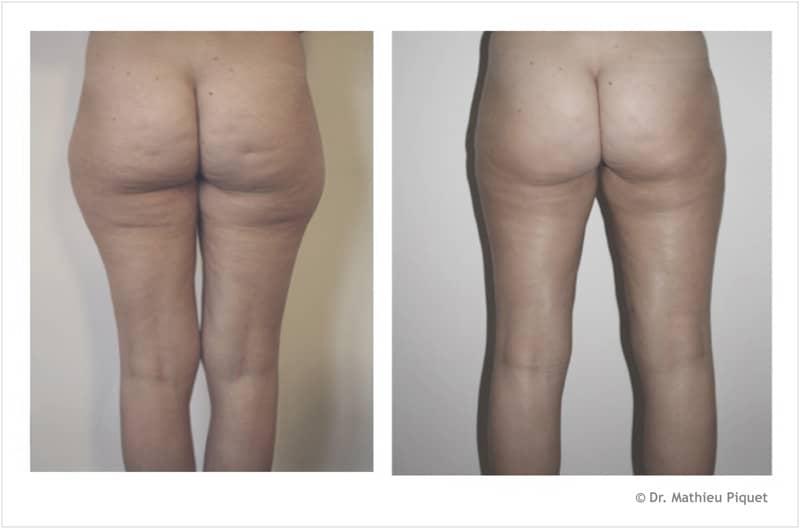 Comment correctement maigrir aux femmes après 50 ans