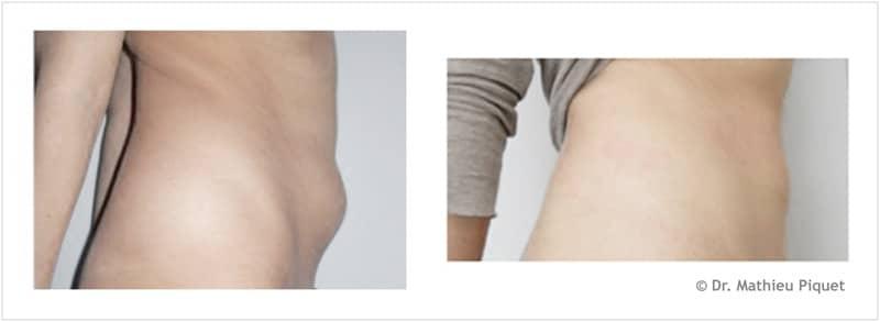 Lipoaspiration abdominale – vue de profil