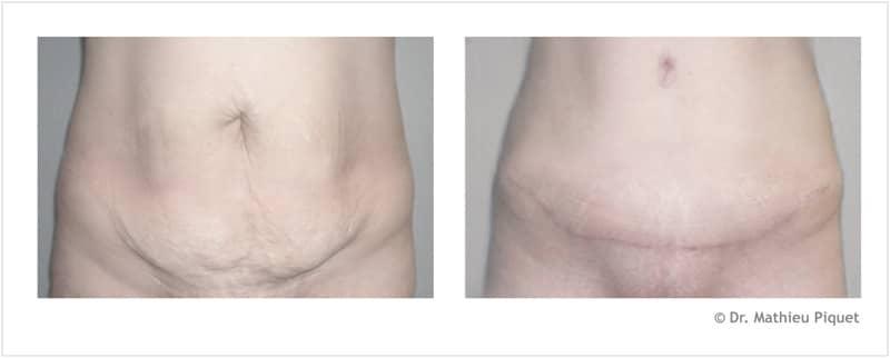 Plastie abdominale pour excès cutané pur après grossesses