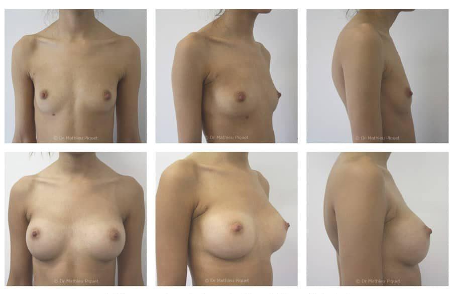 Prothèses mammaires anatomiques polyuréthane de 240cc profil standard