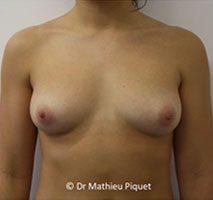 Protheses mammaires anatomiques polyurethane