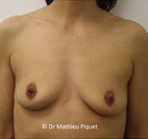 Prothèses mammaires anatomiques polyuréthane 315cc 16