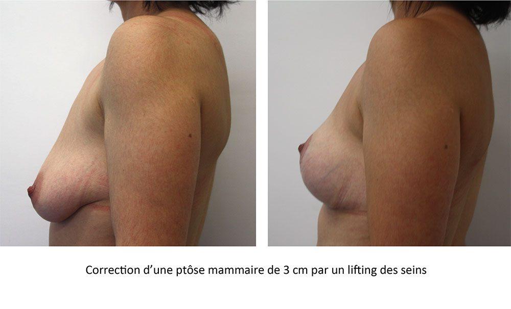 fting de sein chez une patiente de 35 ans avec une ptôse mammaire à 3 cm
