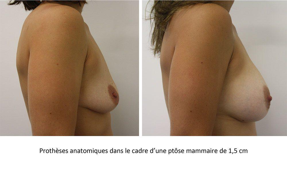 Pour les petites ptôses entre 1 et 2 cm associées à un sein vidé