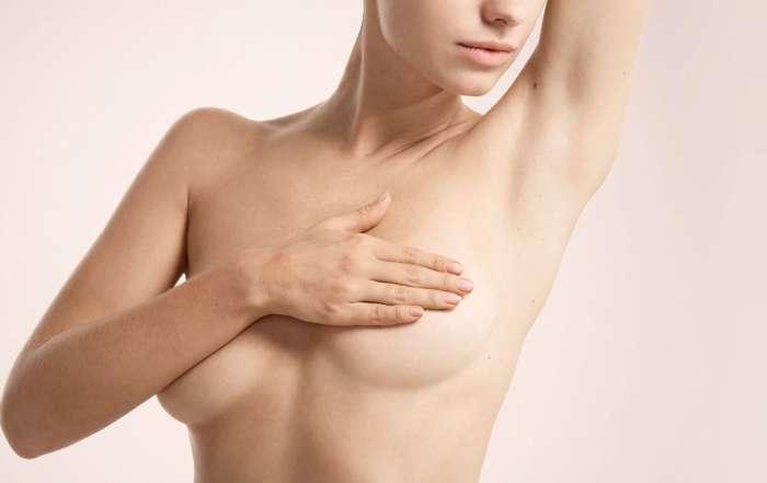 Ptôse mammaire : lifting des seins ou prothèses ?